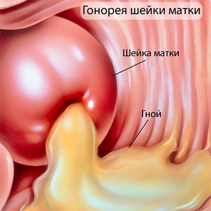 Причины появления жжения при мочеиспускании во время молочницы