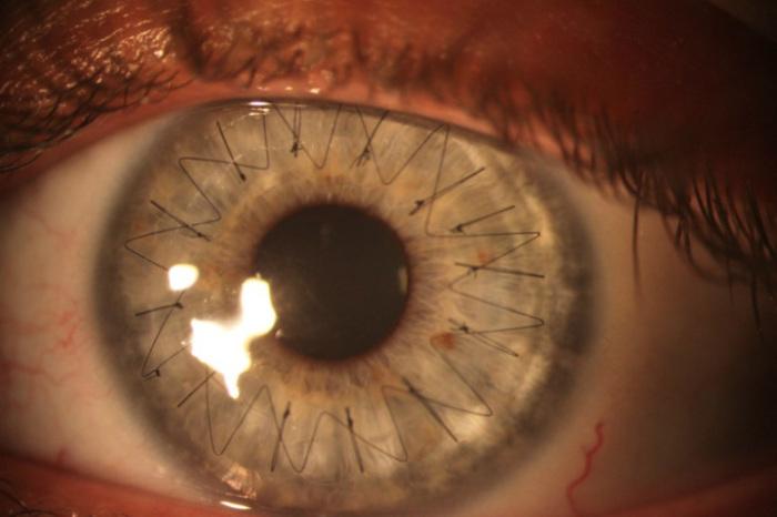 Операция по трансплантации роговицы глаза.