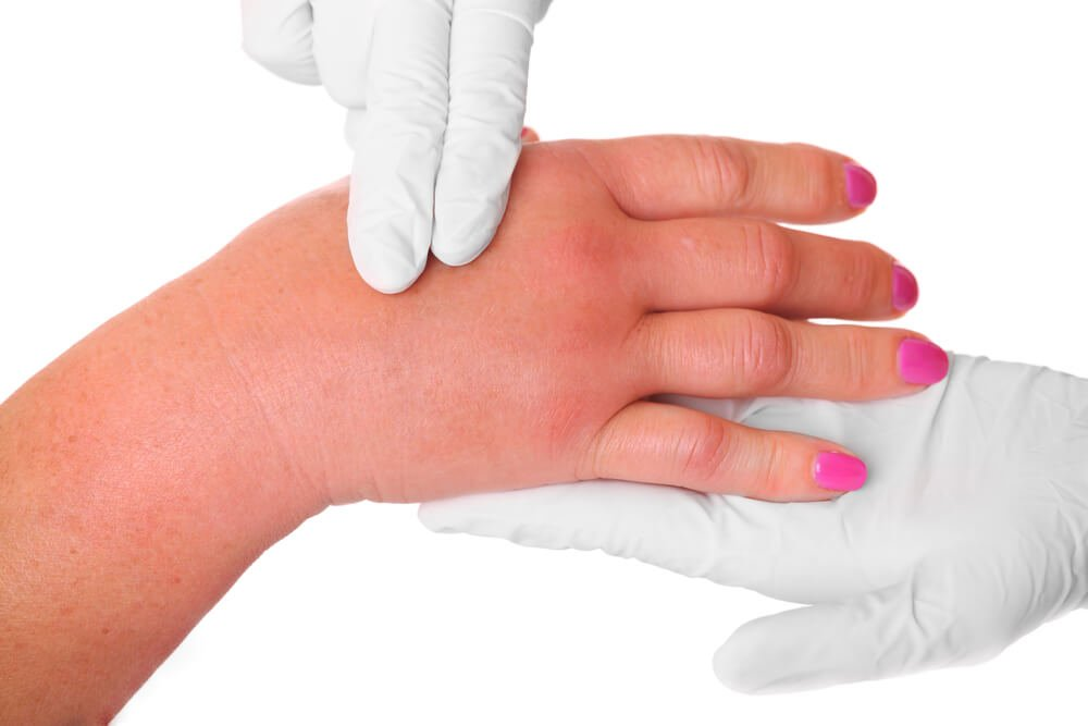 чем снять отек сустава пальца руки