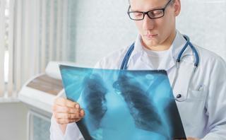 Правда и мифы о туберкулезе