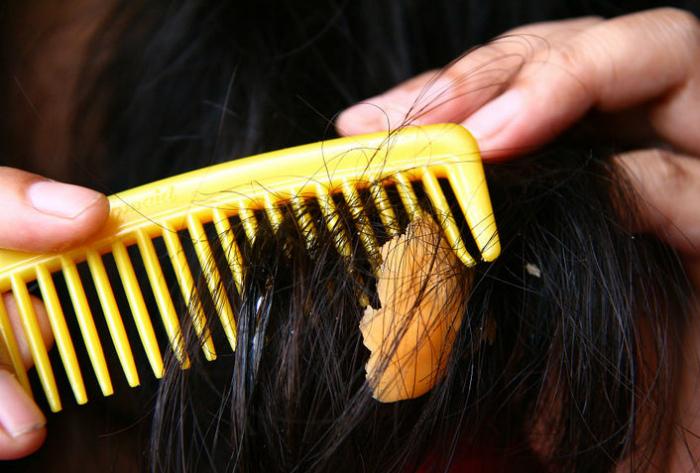 Жевательная резинка, запутавшаяся в волосах.