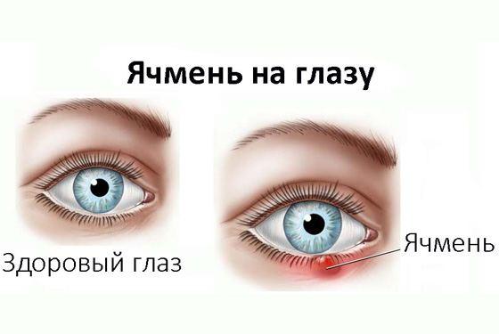 заболевание глаз ирит