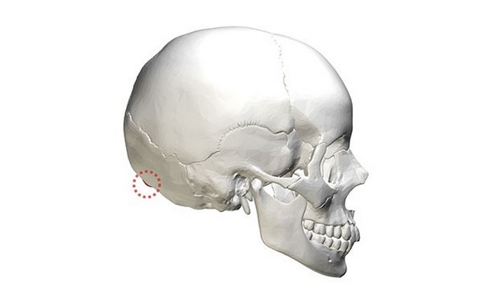 Форма черепа.