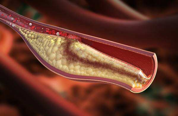 овсянка при повышенном холестерине
