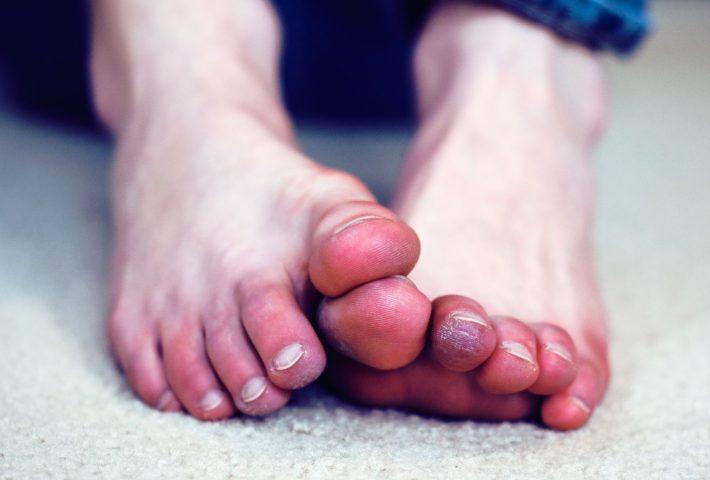 переохлаждение ног