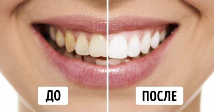Да здравствует прекрасная улыбка! \ Фото: pinterest.at.