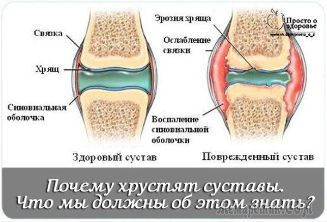 Почему щелкают суставы боль в левом тазобедренном суставе при ходьбе