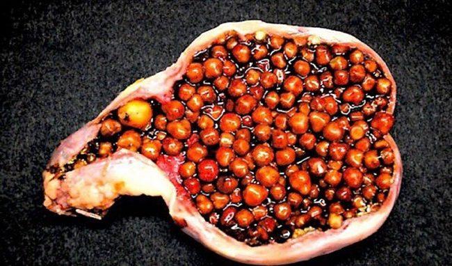 фрукты снижения холестерина