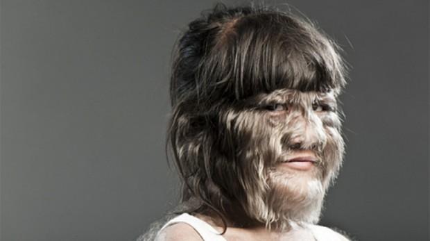 4 болезни, способныхa сказку превратить в реальность
