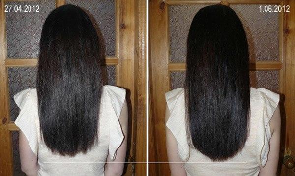 никотиновая кислота для волос как применять