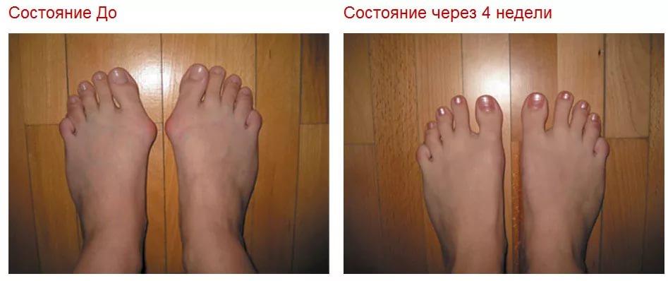 Лечение косточек на большом пальце ноги