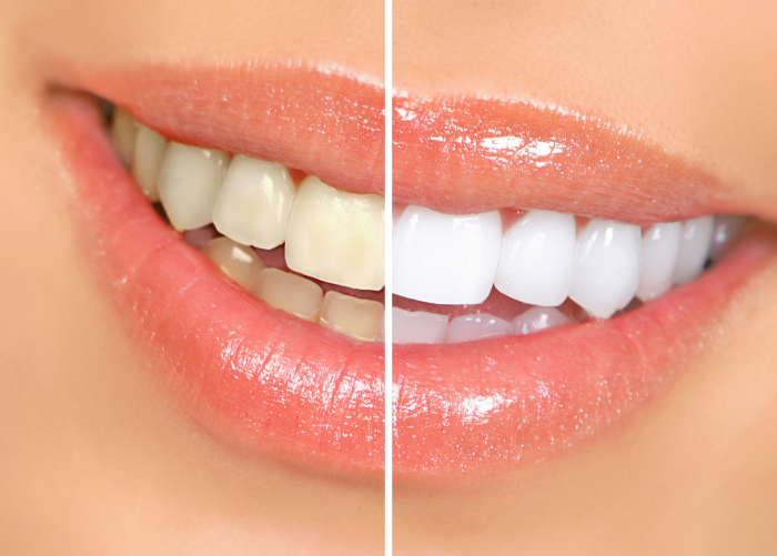 Средство для отбеливания зубов.