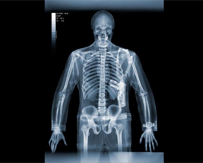 Фото рентген одягу — pic 11