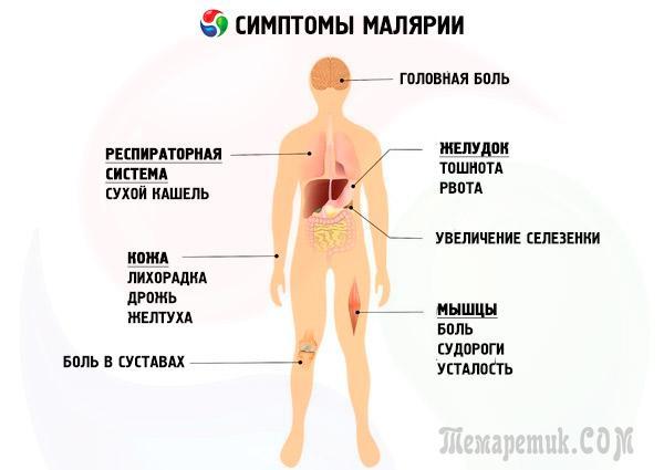 Тропическая малярия: симптомы