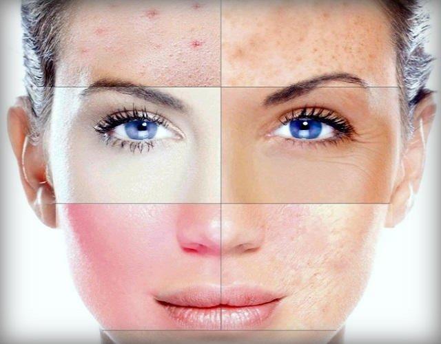 Маска для разных типов кожи