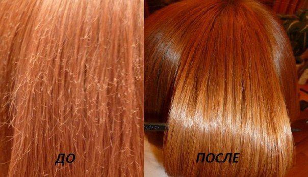Причины выпадения волос на висках у женщин