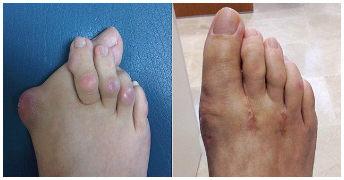 Рост косточки на ногах причины почему растут косточки на ногах