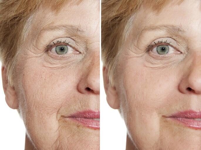 как убрать носогубные складки в домашних условиях отзывы фото до и после