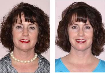 Фотоомоложение лица до и после