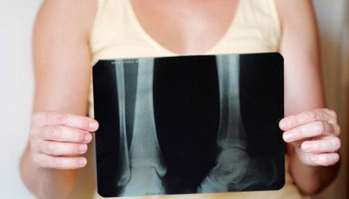 Изображение - Признаки рака костей и суставов fullsize