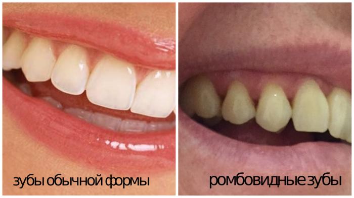 При ромбовидных зубах зубная нить – ежедневный товарищ.