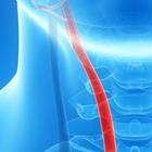 Как сохранить здоровье артерий