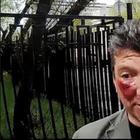 Депутату Единой России разбили лицо за езду по тротуару