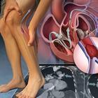 Причины тромбоза и специальные упражнения