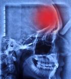 Что нужно знать о «тихом инсульте» — третьей в мире причине внезапной смерти