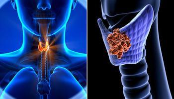 Щитовидная железа: Как и чем восполнить недостаток йода в организме