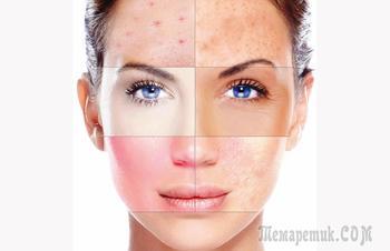 Как ухаживать за каждым из типов кожи лица