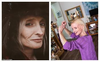 Молодая «старушка»: женщина стареет в 8 раз быстрее, чем обычно, из-за синдрома «Бенджамина Баттона»