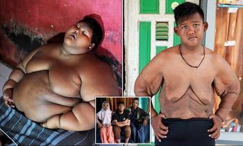 Самый толстый мальчик в мире, который весил 192 кг в 10-летнем возрасте, похудел больше, чем вдвое