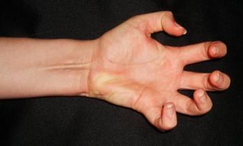 9 удивительных, а иногда и необъяснимых фактов о человеческом теле