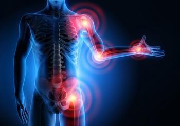 Артрит и артроз: 7-дневная лечебная соковая диета