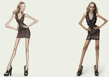 Во Франции запретили моделей с анорексией и вот почему