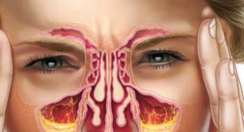 Народные средства от инфекций носовых пазух