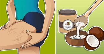 Кокосовое масло против растяжек: 5 рецептов