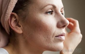 Убираем шрамы от угревой сыпи на коже лица