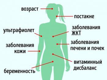 10 средств для кожи, которые стирают пигментные пятна как ластик