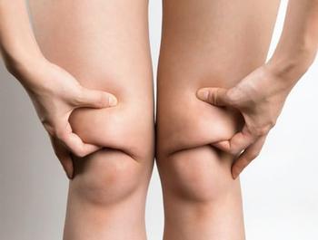 Откуда берутся валики над коленями, и что с ними делать?