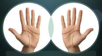 Что значит разрыв линии жизни на руке?