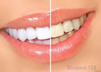 Как отбелить зубы — природные ингредиенты для прекрасной улыбки