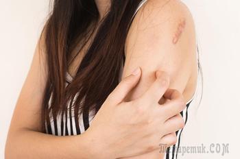 Трихофития у человека: причины, симптомы и лечение
