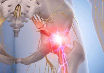 Защемление седалищного нерва: Как избавиться от боли без таблеток