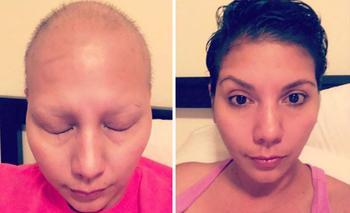 Люди, которые победили рак, в фотографиях «до и после»
