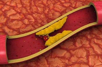 5 естественных способов снизить уровень плохого холестерина за 4 дня