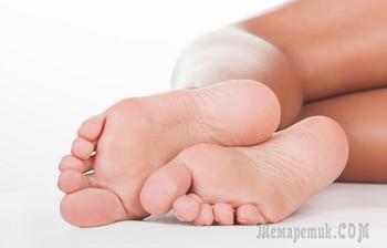 Болезненные трещины на пятках: лечение в домашних условиях