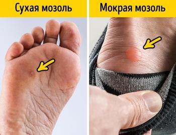 11 легких способов вылечить мозоль от неудобной обуви