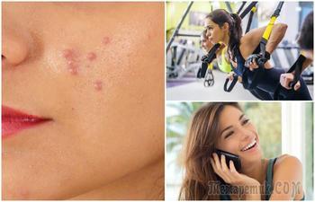 «Завязывайте» немедленно: 8 вредных привычек, которые забивают поры и портят вашу кожу